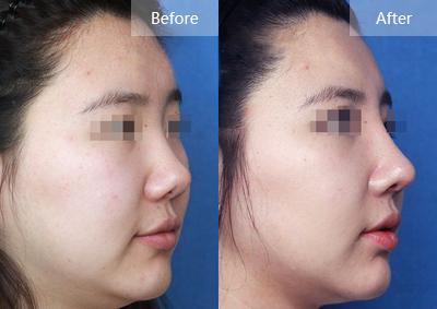 丽格医生巫文云进口硅胶鼻综合整形 全方位解决鼻尖鼻梁问题
