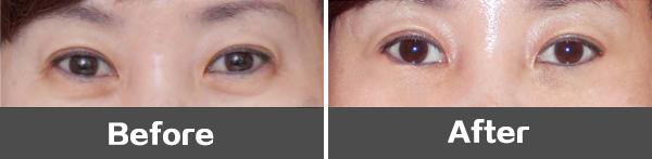 眼袋手术后眼球充血图_微创悬吊祛眼袋 摆脱眼部老态