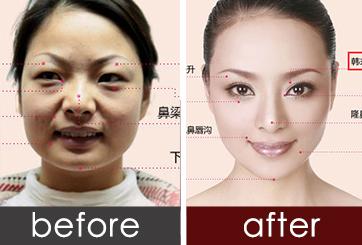 南京韩式微创自然双眼皮 韩式双眼皮 给你诱人灵气的双眸 悦美整形