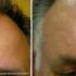 减轻痤疮疤痕的5种方法