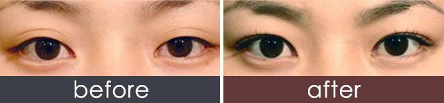 重庆微创三点定位双眼皮 脱去单眼皮改善肿眼泡