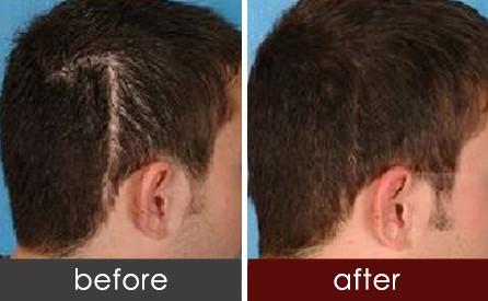 fue植发修复头部疤痕 头发均匀彰显魅力图片