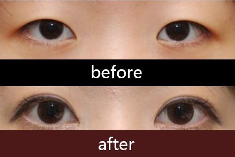 杭州切开双眼皮 切开法塑造精致双眼皮 眼睛有神精神更抖擞 悦美整形