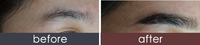 北京韩国专家团队半永久纹眉 韩国专家亲临定制眉形