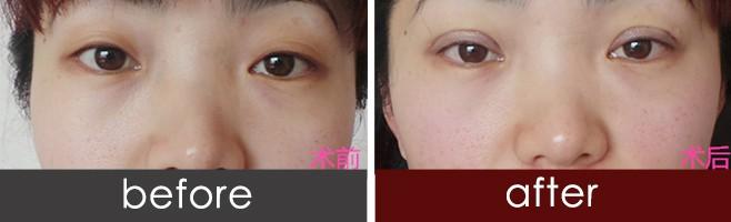济南微创多点韩式三点双眼皮 韩式双眼皮