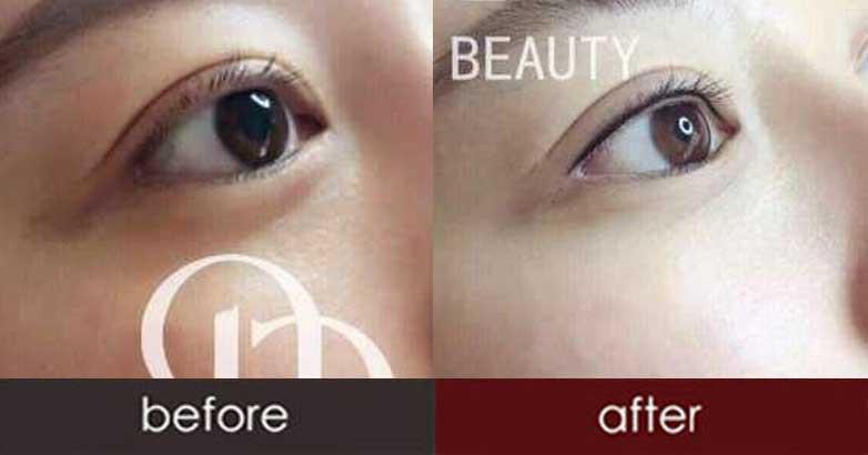 青岛韩式半永久纹眼线|韩式半永久纹眼线