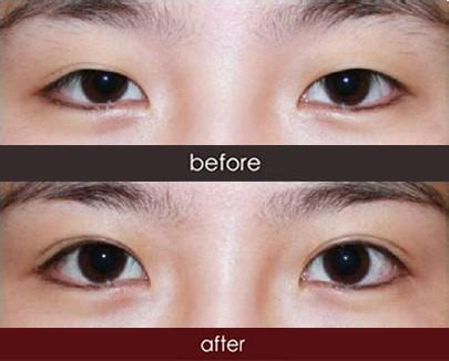 北京韩式三点微创双眼皮 韩式三点微创双眼皮 还你明亮大眼 悦美整形