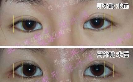 大外眼角术根据眼部解剖的结构,对手术进行了重新的设计和改进,