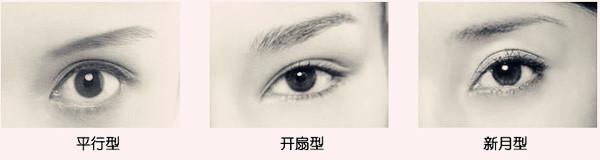 中国人比较关注的双眼皮形状主要有三种