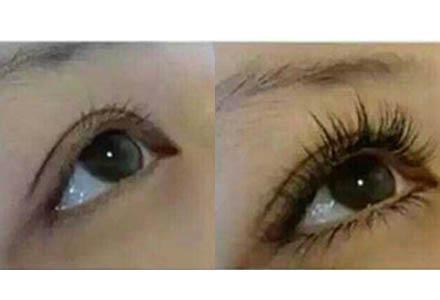 怎样用睫��!��)�h�_郑州孕睫术 自然又美丽 长出自己的眼睫毛