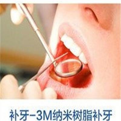 深圳3m纳米树脂牙齿修复