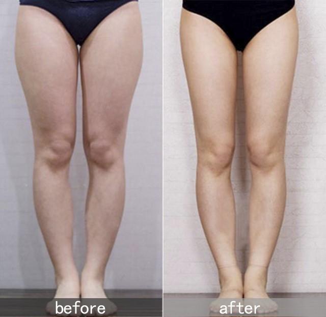 溶脂针瘦大腿多少钱