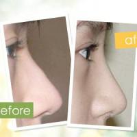 硅胶骨膜下隆鼻   鼻根鼻头问题一起解决