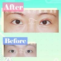 明媚双眸来自精细手法 韩式双眼皮塑造迷人魅力