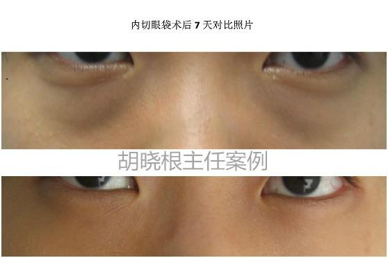 北京祛眼袋