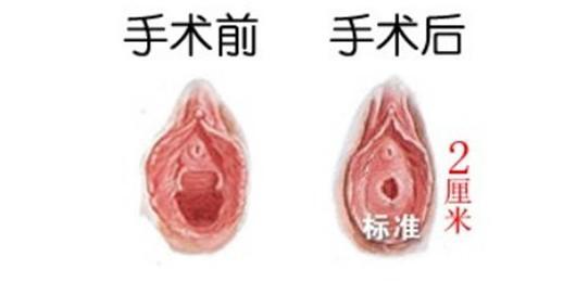 北京私密处女膜修复