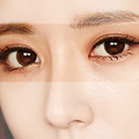 深圳韩式双眼皮开内眼角 韩式三点+开内眼角  还你明亮大眼