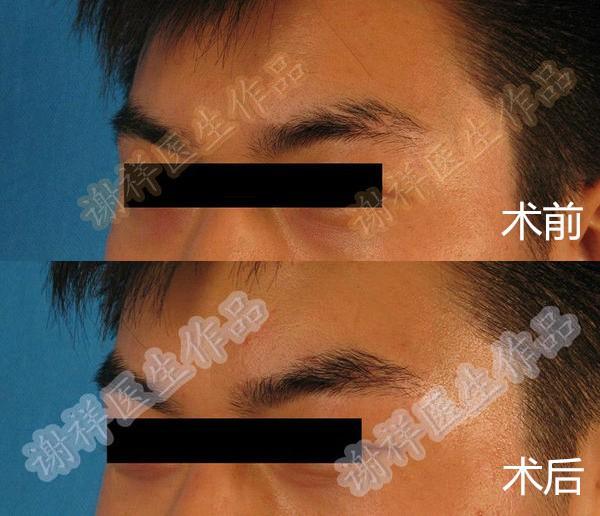 北京眉毛移植