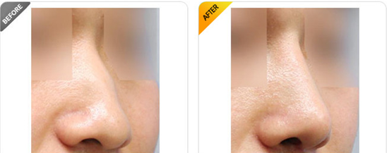 北京隆鼻修复