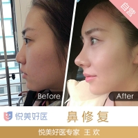 北京隆鼻修复 八大处鼻整形中心王欢 推倒重建给你完美新鼻型